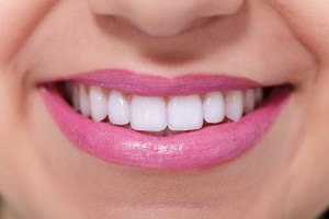 Middlebury Professional Teeth Bleaching services